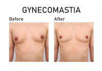 ginekomastia przed i po operacji